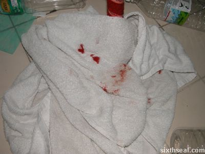blood stained towel