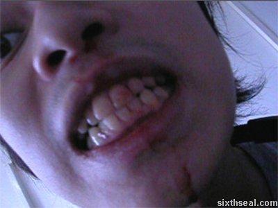 nosebleed teeth