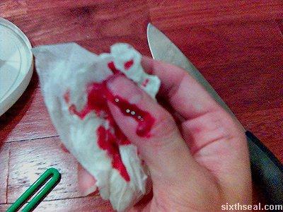 knife thumb bleed