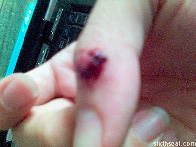 knife thumb clot