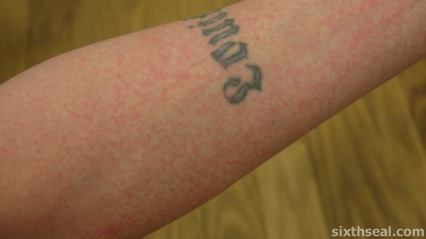 dengue fever rash
