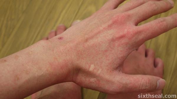 rash dengue